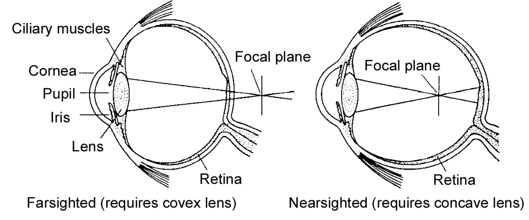 The visual system in chapter 04 senses lens shown bending light ccuart Gallery